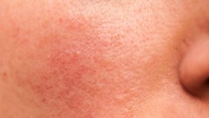 photo of Rosacea condition on cheek