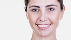 comparison of skin before and after a treatment skincare concept