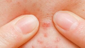 photo of someone squeezing a pimple